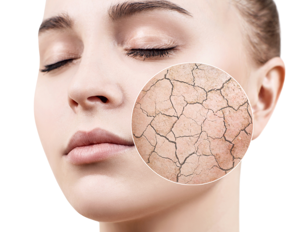 7 SURPRISING CAUSES OF DRY SKIN YOU MUST KNOW