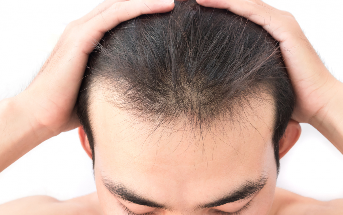 WHAT TO CONSIDER WHEN CHOOSING A HAIR TRANSPLANT DOCTOR
