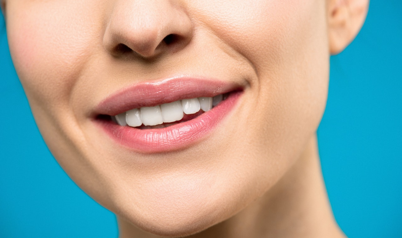 TEETH WHITENING: TIPS, SIDE EFFECTS AND DURATION
