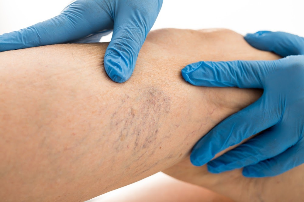 WHEN SHOULD YOU ACTUALLY START WORRYING ABOUT SPIDER VEINS?