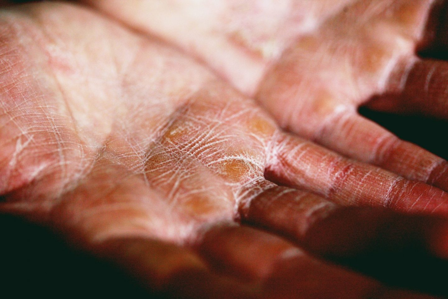 WHAT IS ATOPIC SKIN?